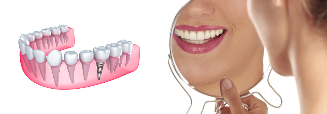Implantologia Dentale Via Bramante Milano