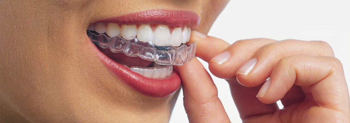 Invisalign Via Washington Milano, per un sorriso sempre smaliante
