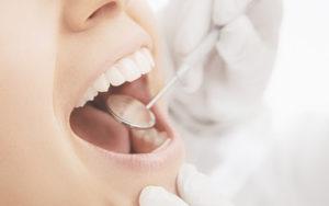 Impianti Dentali A Milano